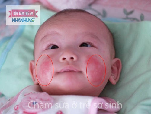 Chàm sữa ở trẻ sơ sinh và trẻ nhỏ Hình ảnh và dấu hiệu nhận biết bệnh chàm sữa