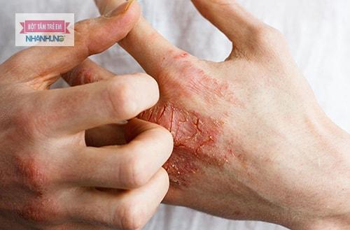 Đối phó với viêm da tiếp xúc dị ứng tại nhà