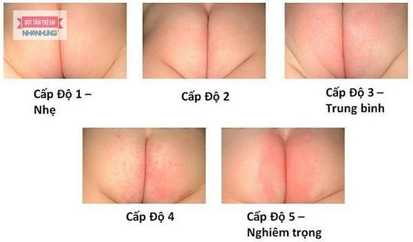 Tác dụng của bột tắm Nhân Hưng trong điều trị hăm tã ở trẻ sơ sinh và trẻ nhỏ